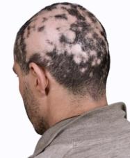 alopecia-areata-cure